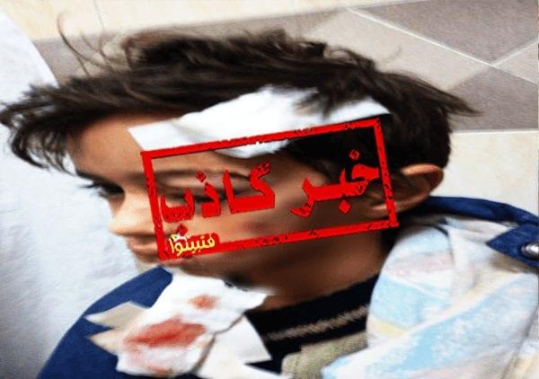 هذه الصورة لطفل تركي وليست لطفل مدينتي الذي تعرض لهجوم من الكلاب الشرسة