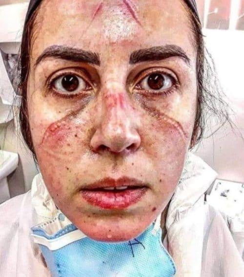 صورة تعود لممرضة برازيلية تدعى Amanda Ramalhoo