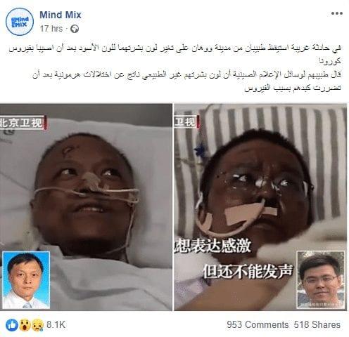 تحول بشرة طبيبان للون الأسود بعد الاصابة بفيروس كورونا الجديد