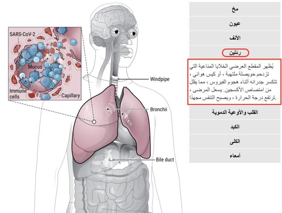 كوفيد 19 يصيب فعلا الجهاز التنفسي ويتسبب في تلفه