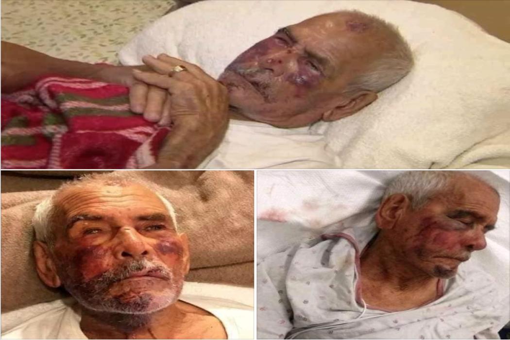 رجل تعرض للضرب في أمريكا وليس في ليبيا